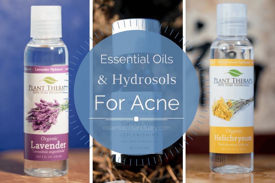 EO hydrosols for acne featured