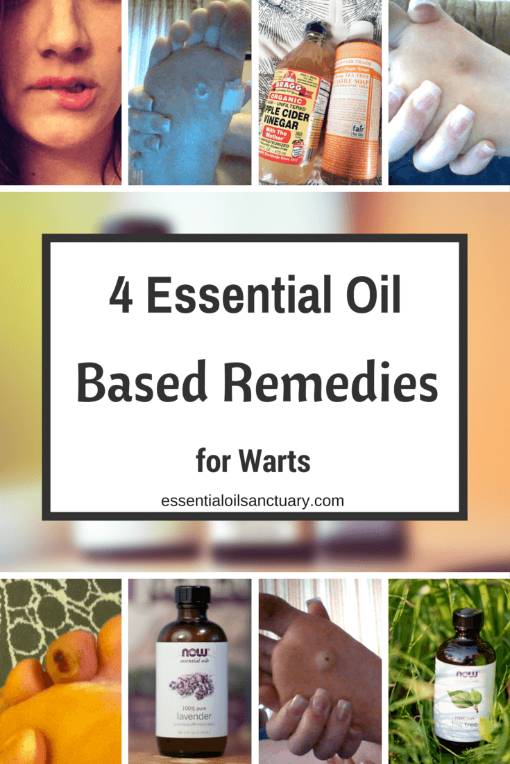 4 Essential Oil based remedies for warts