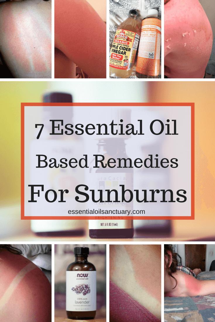 doterra oil for sunburns