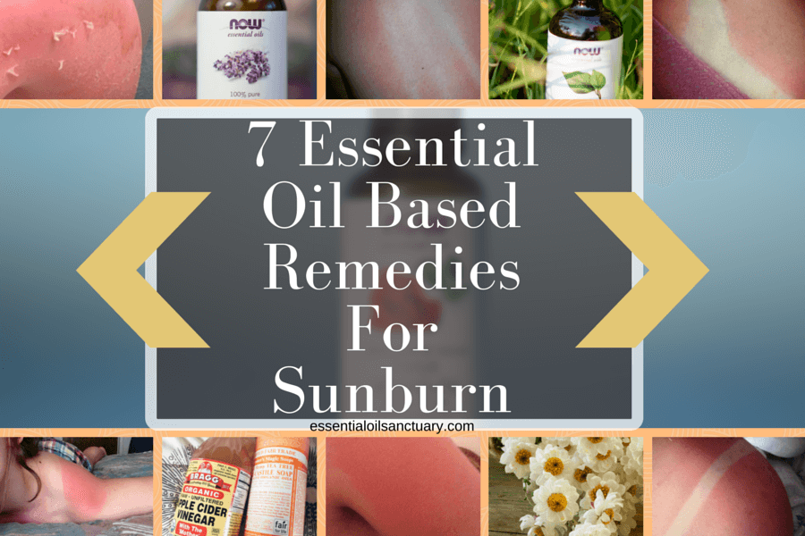 Essential Oil based remedies For Sunburn