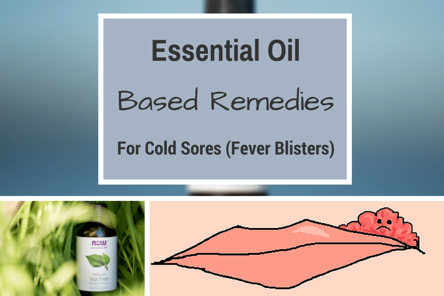 11 Best Essential Oil Based Remedies For Cold Sores Fever Blisters