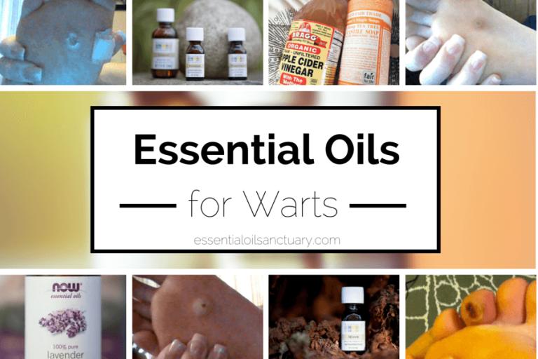 4 Essential Oil Based Remedies for Warts (Verruca)
