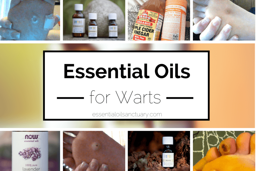 essential oil recipes for warts