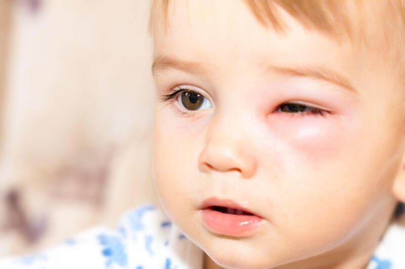 bruise bee sting