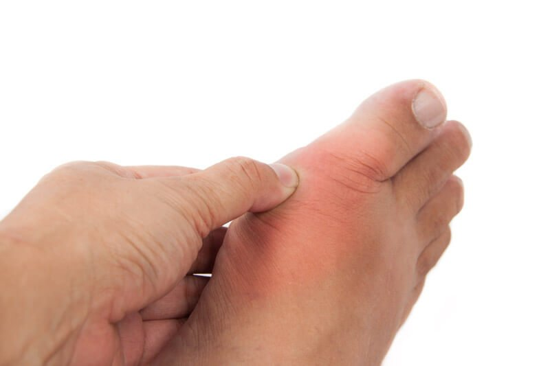 gout sore foot