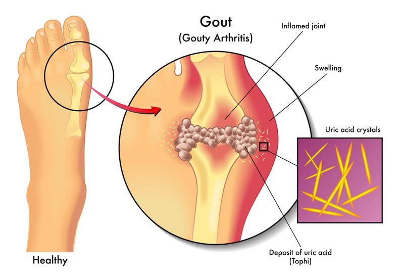 home remedies for gout foot pain pseudogout knee pain reasons of increase of uric acid in human body