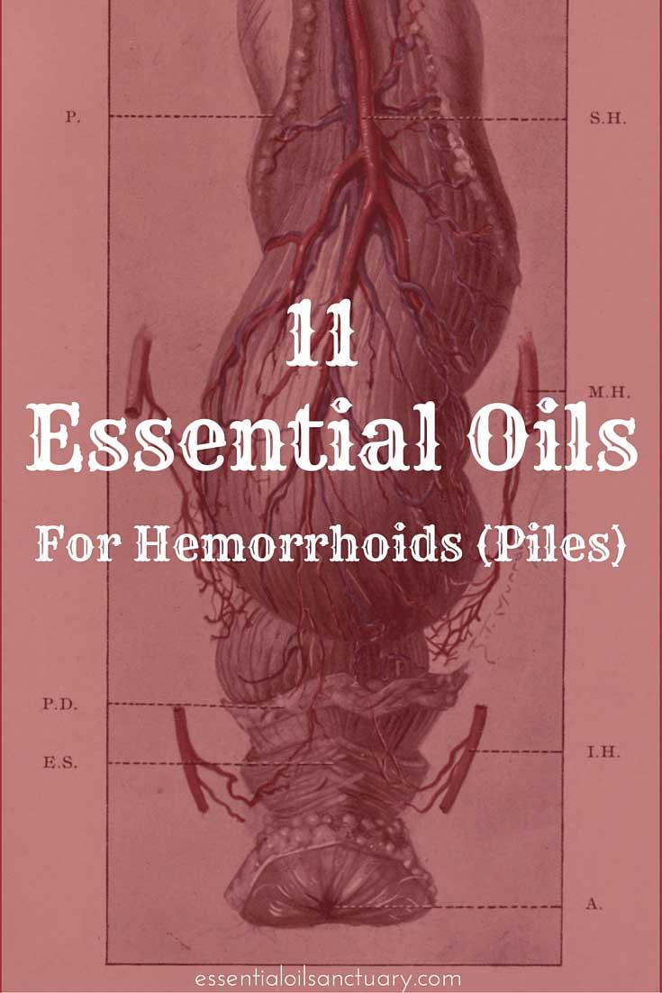 hemorrhoids piles essential oil